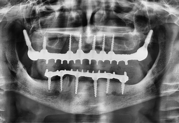 Implantation All 2