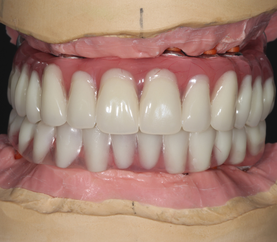 Implantation All 4
