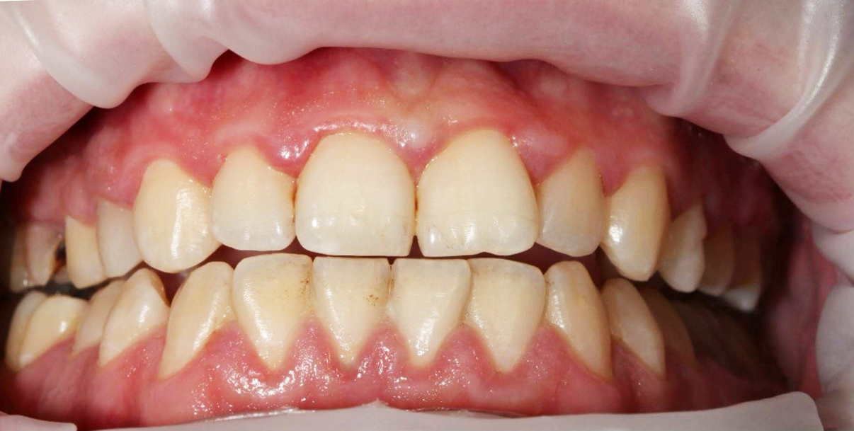 gigiena before