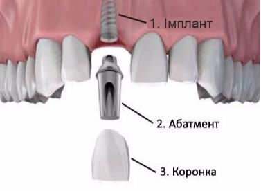 odnoetapna implantatsiia zubiv 2
