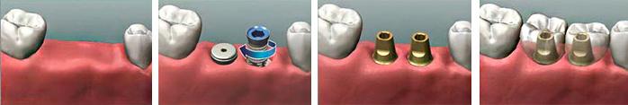 odnoetapna implantatsiia zubiv 3