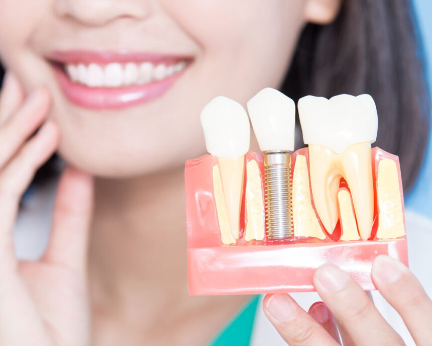 Одноетапна імплантація зубів, етапи та переваги